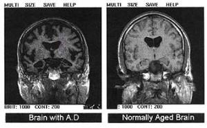 CT glave, lijevo mozak zahvaćen Alzheimerovom bolešću, desno mozak zdrave osobe